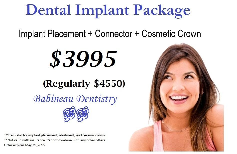 Dental Implant Package Special