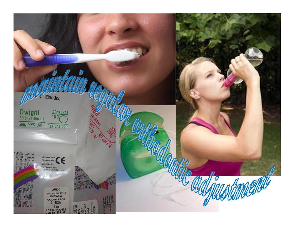 5 Ways to Help Your Orthodontic Treatment Go Quickly